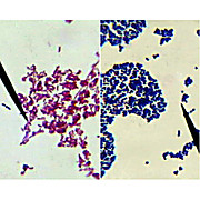 Bacterial Gram Staining Kit